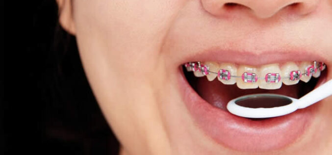 Afford a Trip to The Orthodontist With These Money Saving Tips